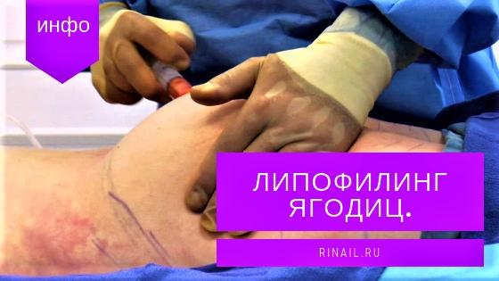 Липофилинг ягодиц: почему не стоит увеличивать попу у хирурга, изображение №1
