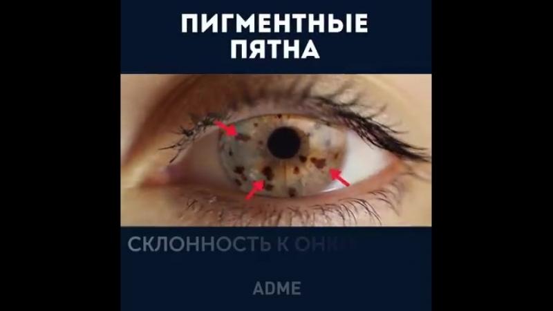 Глаза могут рассказать очень много о вашем здоровье.