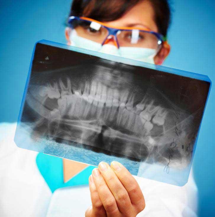 Рентген может использоваться, чтобы помочь дантистам диагностировать смещенные укусы.