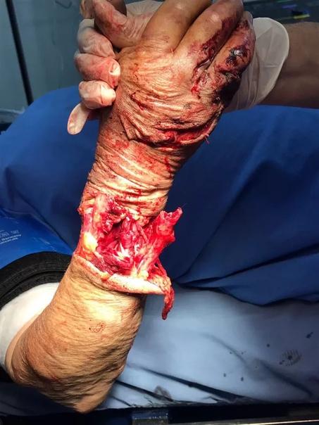 Картинки травмы рук