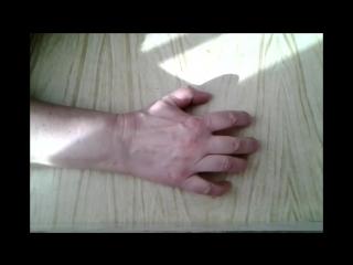 ЛФК (лечебно-физкультурный комплекс)  после перелома руки, лучезапястного сустава