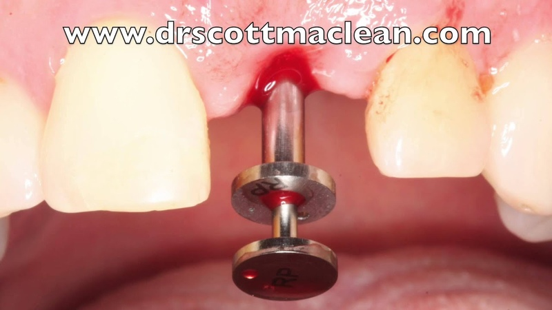 How to Get a Fractured Zirconia Abutment Out of a Conical Connection Implant