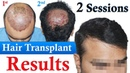Hair Transplant with low Donor| Dr Suneet Soni | Medispa India | Best Hair Transplant Jaipur Delhi