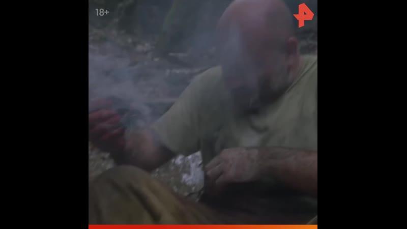 Тимофей Баженов прижигает рану РЕНТВ