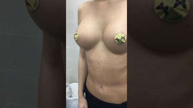 Увеличение груди ★ 9 месяцев после операции