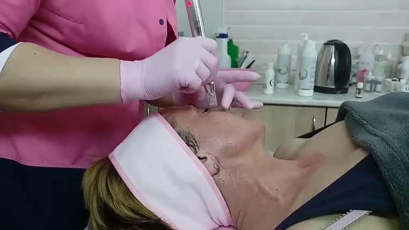 Фракционная мезотерапия в Кобрине - 7 линий красоты