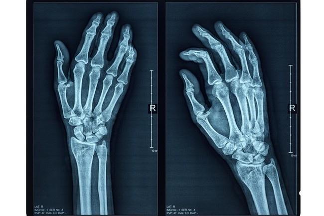 Австралийские учёные научились печатать кости внутри тела человека