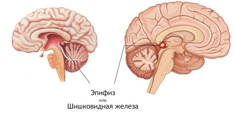 ЭПИФИЗ — наша САКРАЛЬНАЯ железа | ВКонтакте