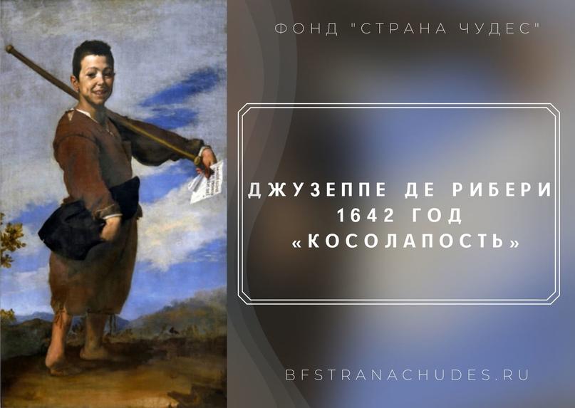 История изучения ДЦП. Часть 2. Средние века и смута., изображение №3