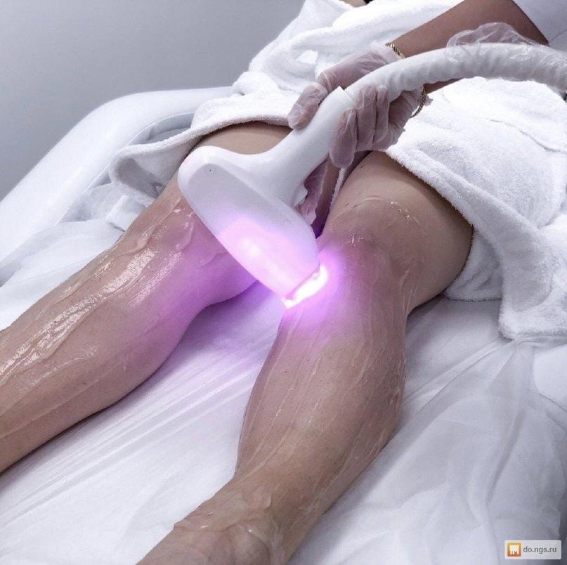 Приглашаем  на сеансы лазерной эпиляции на новом , мощном диодном лазере нового...