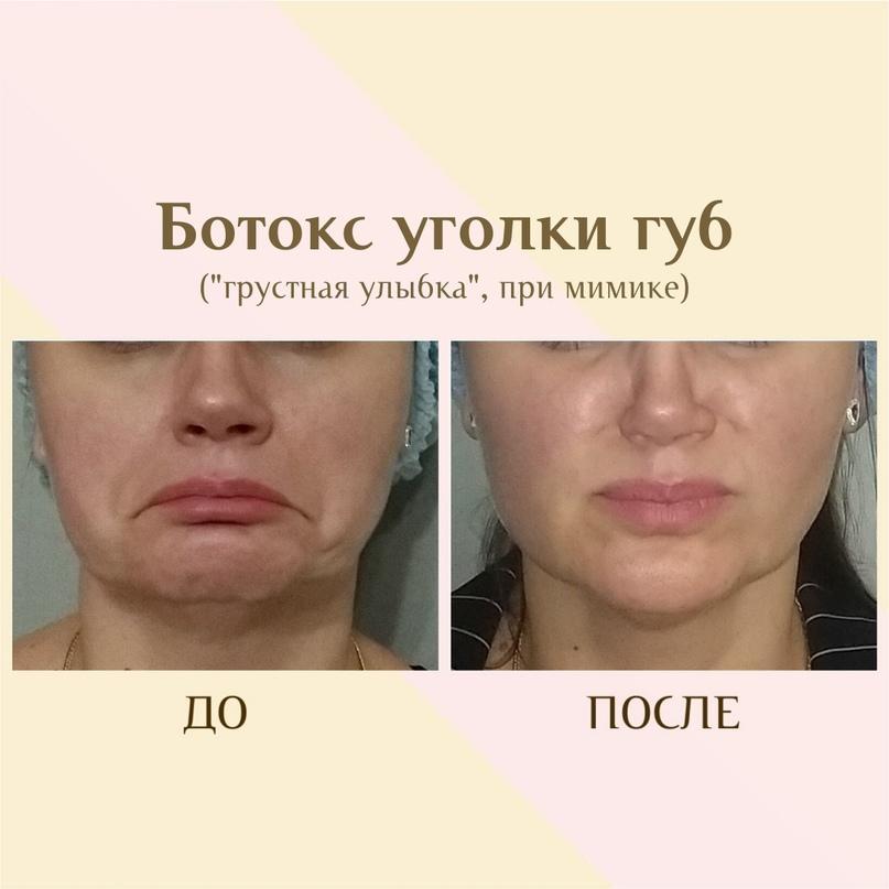 Губы и область вокруг рта., изображение №18